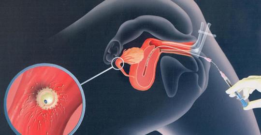 Ginnastica per osteochondrosis di reparto cervicale del dottore